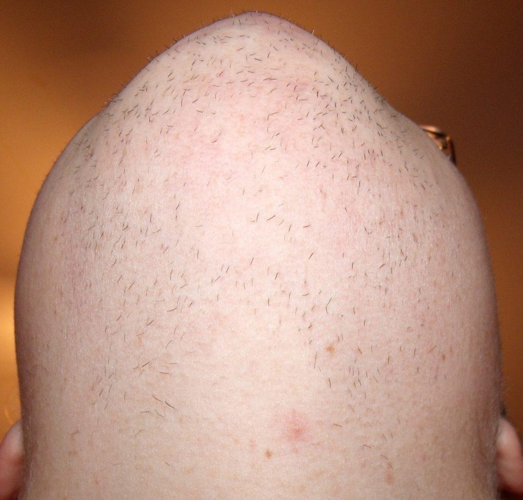 5 Doubts About Men Pubic Hairstyles You Should Clarify ...
